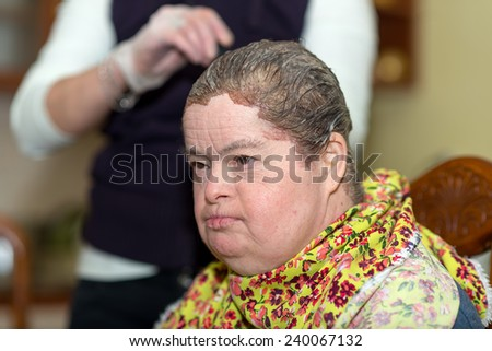woman with down syndrome during hair coloring  - stock photo