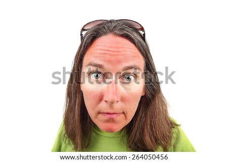 Woman with sunglasses sunburn - stock photo