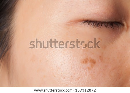 Women problem skin with blemish and spots