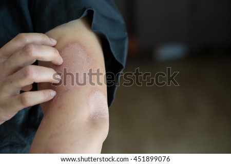 Women scratch the itch with hand ,arm, itching, Concept with skin Healthcare - stock photo