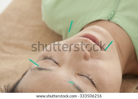 Women who acupuncture for beauty - stock photo