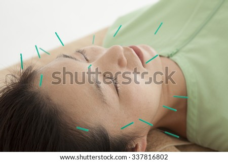 Women who get acupuncture in the face for health - stock photo