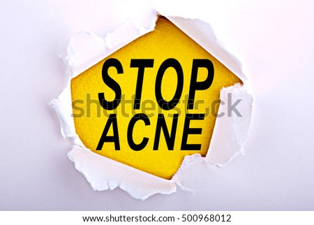 Words Stop Acne on ripped paper - Business, technology, internet concept. Stock Photo
