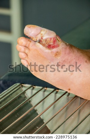wound of diabetic foot  - stock photo