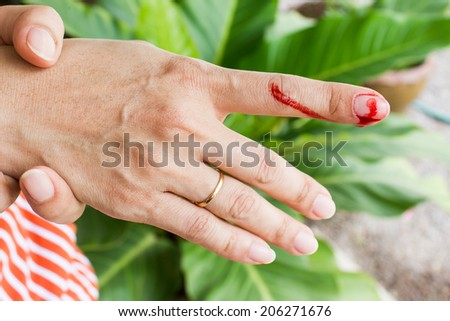 wound with blood on finger - stock photo