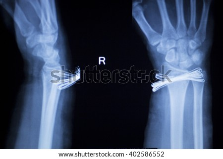 Wrist, hand, forearm and arm injury medical x-ray test scan result for adult showing orthopedic Traumatology titanium metal plate implant image. - stock photo