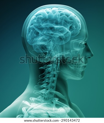 x-ray brain - stock photo