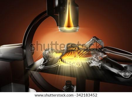 x-ray examination of human bones - stock photo