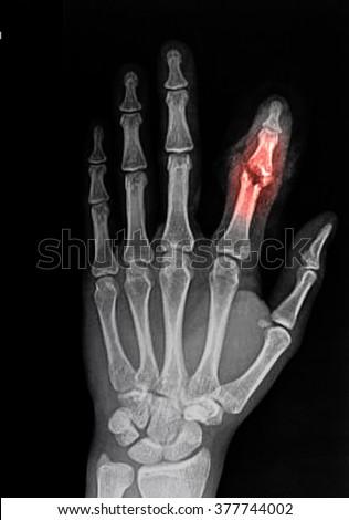 broken finger stock images royaltyfree images amp vectors