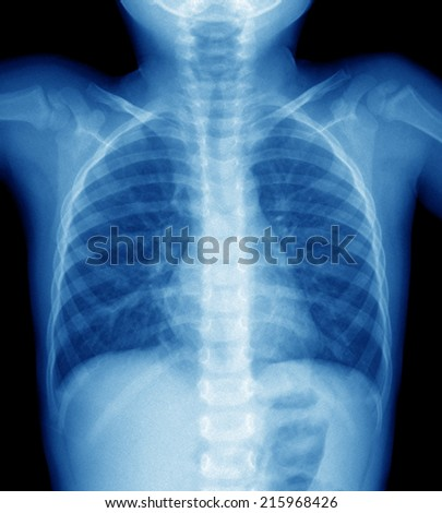 x-ray film of chest