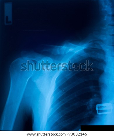 X-ray film of clavicle fracture. - stock photo