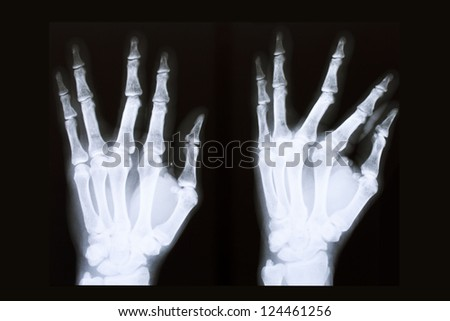 x-ray film of hand 2 position - stock photo