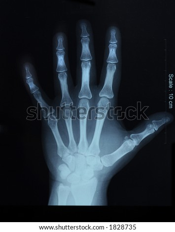 x-ray film of hand, top view - stock photo