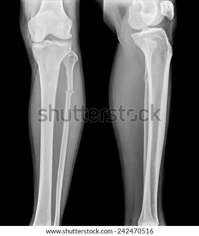 Lower Extremity Distal Femur Missing Stock Photo 185900960 ...