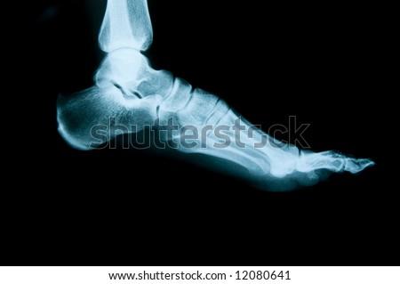 X-ray foot - stock photo