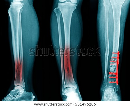 Tibia Stock Images, Royalty-Free Images & Vectors   Shutterstock