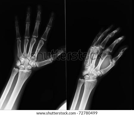 X-Ray hands - stock photo