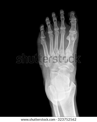 X-ray human's ankle with arthritis , top view - stock photo