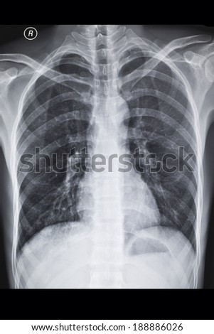 X-ray image chest - stock photo