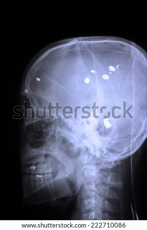 X ray image of a bullet from gun in  skull - stock photo