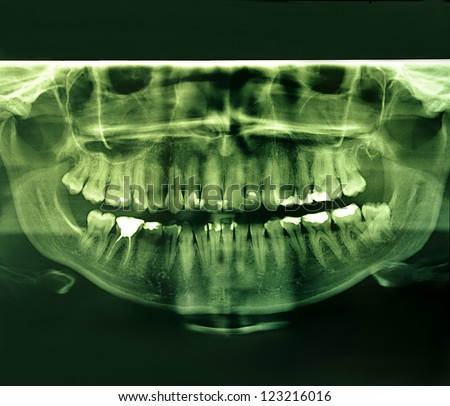 X-Ray image of a human jaw, mouth and teeth with plumbing. - stock photo