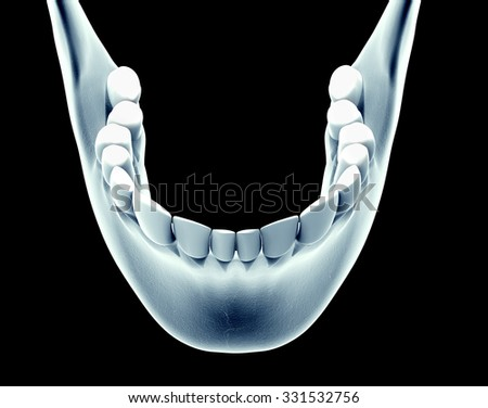 x-ray image of a jaw with teeth. - stock photo