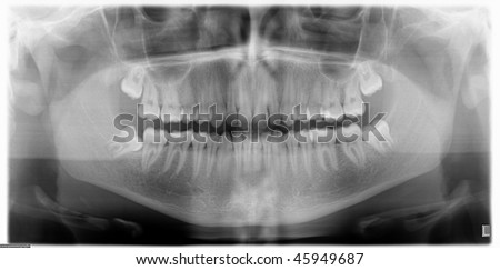 x-ray image of a jawbone - stock photo