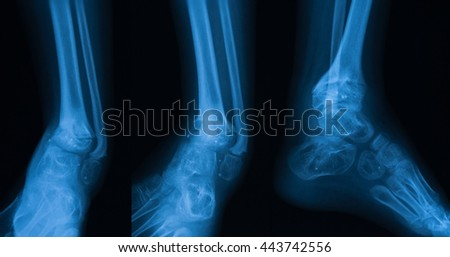 Osteomyelitis Stock Images, Royalty-Free Images & Vectors ...
