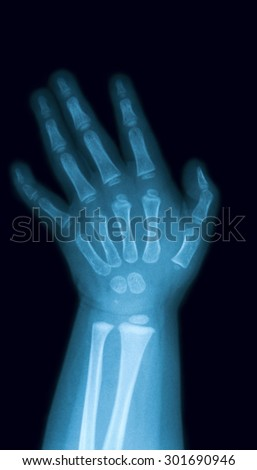 X-ray image of baby hand, PA view,