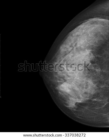 X-ray image of Breast or Mammogram woman. - stock photo