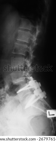 X-ray image of broken lumbosacral (L-S) spine, lateral view after treating by screws.