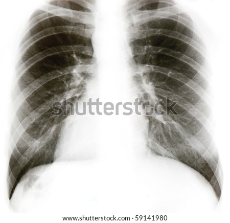 X-ray image of chest bones isolated on white. - stock photo