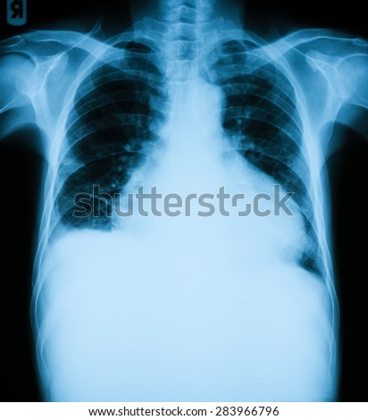 X-ray image of enlarged hearth, PA upright view .