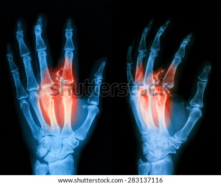 X-ray image of hand, PA and oblique view. Showing metacarpal fractures. - stock photo