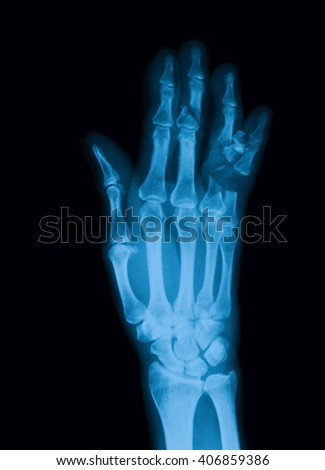 X-ray image of hand, PA view , showing fractures of the middle and proximal phalanges - stock photo