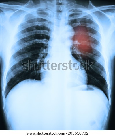 X-Ray Image Of Human Ches tbones for a medical diagnosis - stock photo