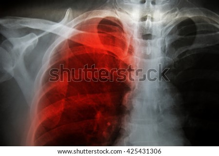 X-Ray Image Of Human Chest for a medical diagnosis Pulmonary Emphysema.in world no tobacco day concept. - stock photo