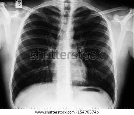x-ray image of human chest without any findings
