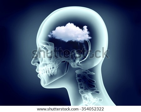 x-ray image of human head with cloud - stock photo