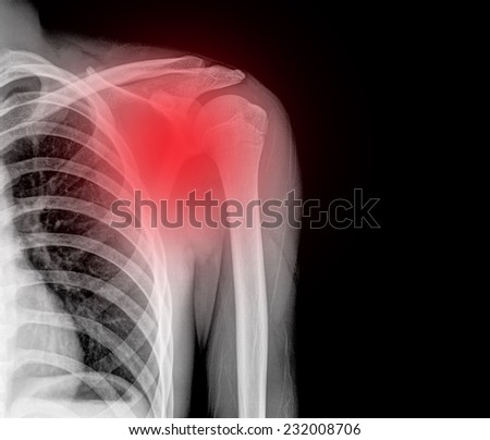 X-ray image of left chile  shoulder - stock photo