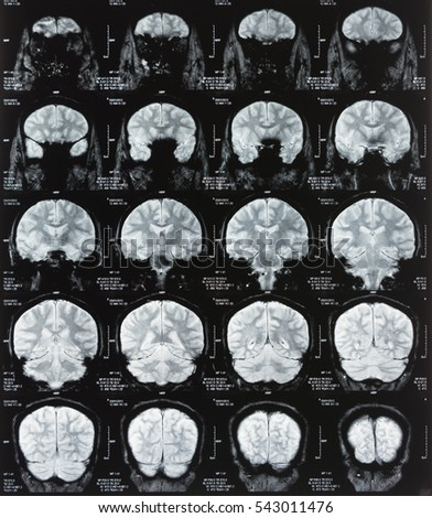 x-ray image of patient brain scan by magnetic resonance imaging, mri scan for medical diagnosis.
