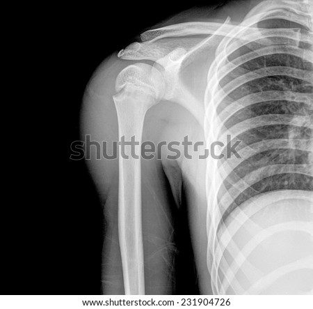 X-ray image of right chile shoulder - stock photo
