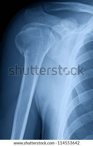 X-ray image of right male shoulder after month of treatment of broken neck of humerus. - stock photo