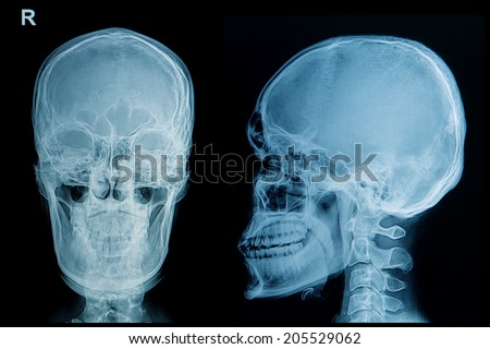 x-ray image of skull human
