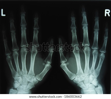 X-ray image of the hands