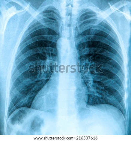X-Ray image of the human chest - stock photo