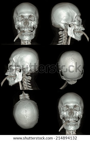 X-ray image of the skull computed tomography 3D - stock photo
