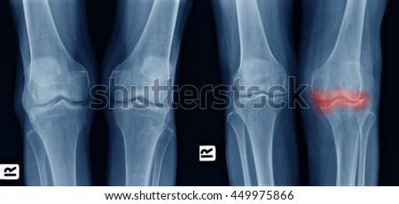 X-ray image show comparison of older normal knee on left side  and osteoarthritis knee on right side front view. area of deformity with red color mark. - stock photo