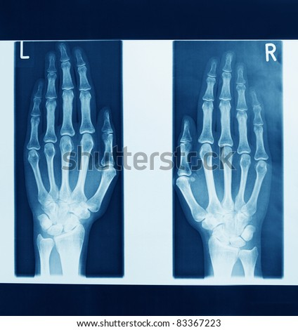 x-ray images - stock photo