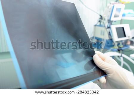 X-ray in hands of doctor in the hospital - stock photo
